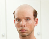baldness before treatment