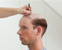 toupee alternative is being prepared